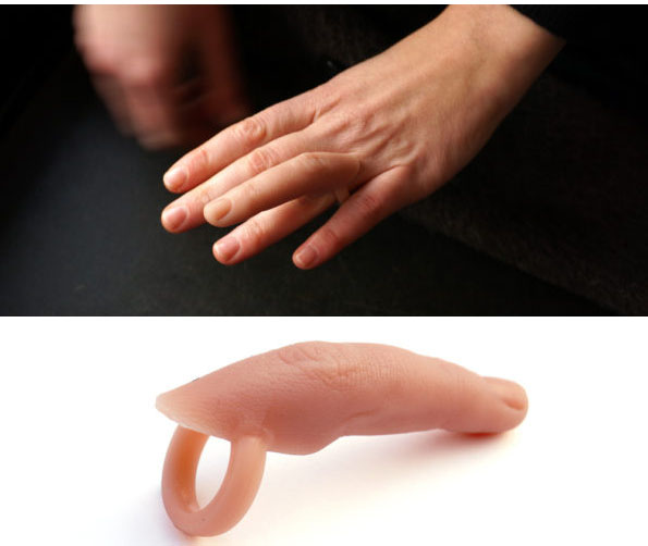 finger-ring